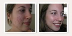 Come eliminare i brufoli – Guida Gratuida da scaricare ,come eliminare i brufoli,come eliminare l'acne,eliminare l'acne,cura,come curare i brufoli