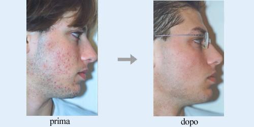 Come eliminare i brufoli ,eliminare i brufoli,brufoli,curare i brufoli,mai piu acne
